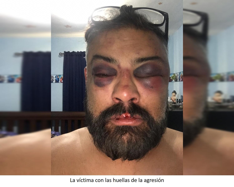 Riebeling da brutal golpiza a abogado