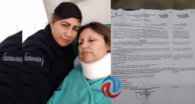 Denuncia mujer abuso y lesiones por parte de policías de Mexicali - AGENCIA FRONTERIZA DE NOTICIAS